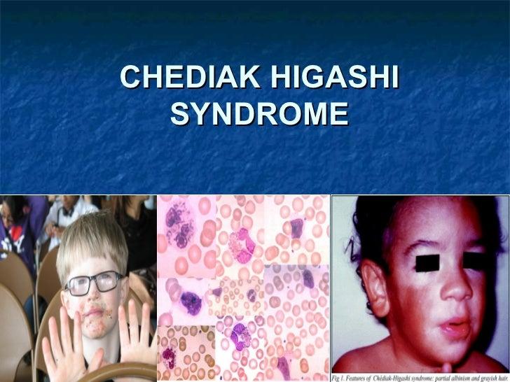 CHEDIAK HIGASHI  SYNDROME