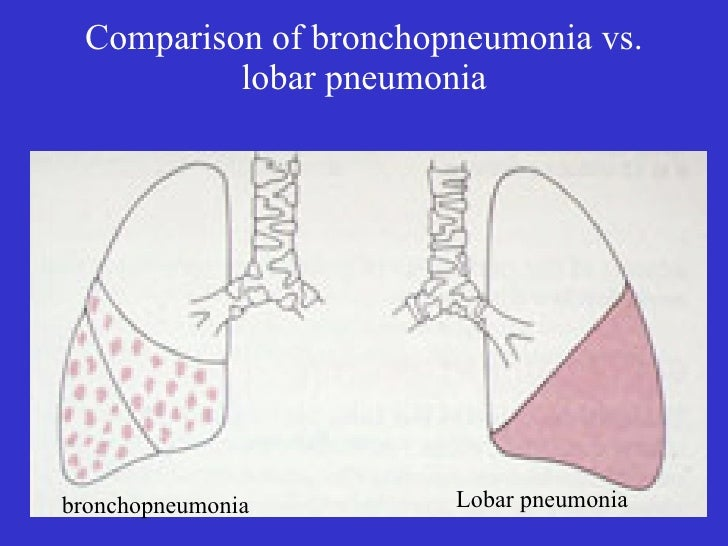 bronchopneumonia introduction case study Introduction of case study my case study done at ward 3(female ward), hospital t and the title is bronchopneumonia, i choose this title because that is often occur at.