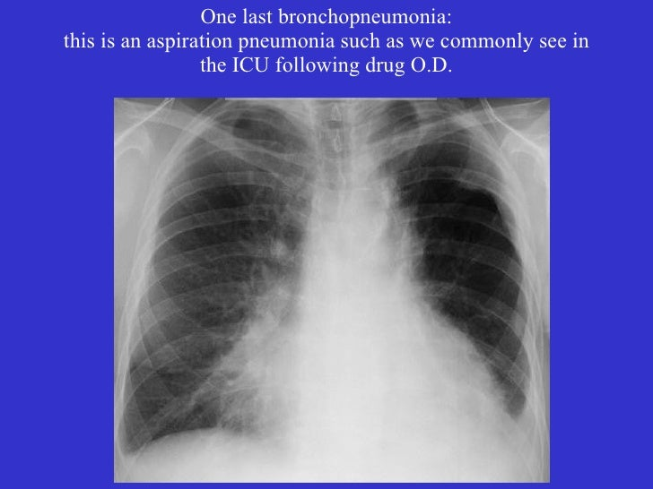 Pics For > Bronchopneumonia X Ray