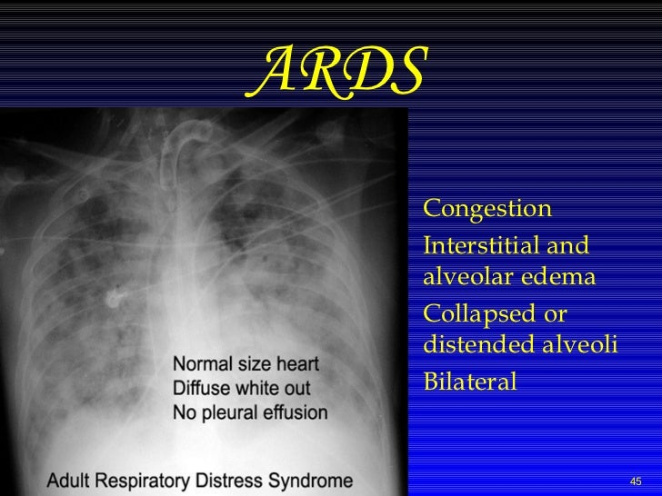 md respiratory therapy essay Respiratory disease: a case study approach to patient care without having to wait or complete any advertising offers to gain access to the file you need.