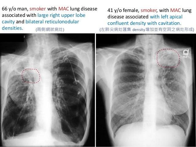 Chest imaging of ntm pulmonary disease2