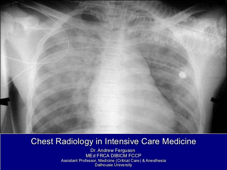 Chest radiology in intensive care