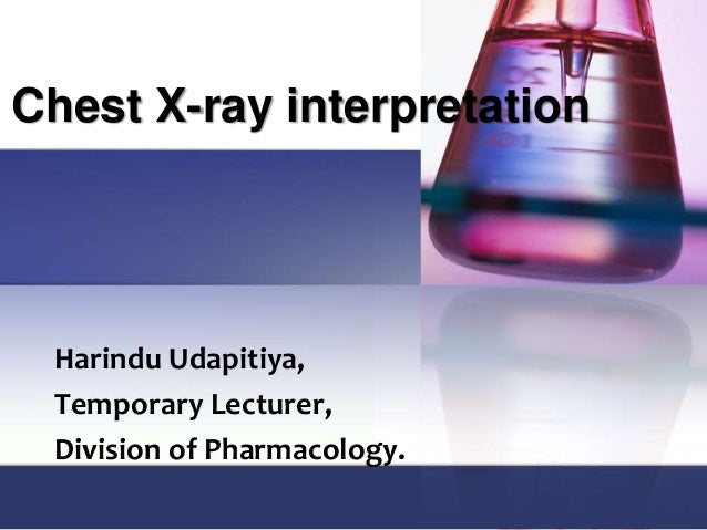 Chest X-ray interpretation Harindu Udapitiya, Temporary Lecturer, Division of Pharmacology.