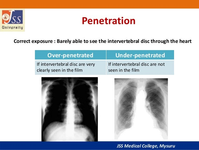 Xray penetration vs exposure