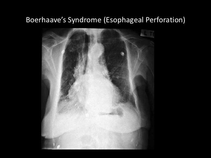 chest x rays