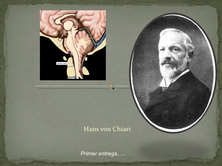 Hans von Chiari Primer entrega…..