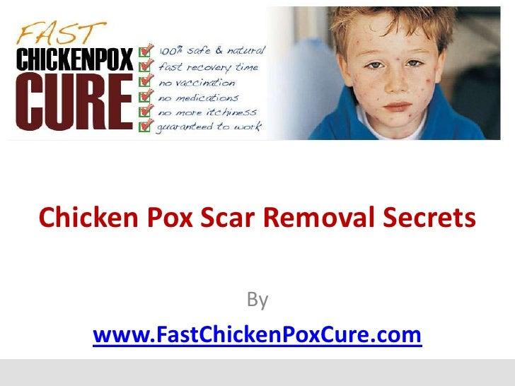 Chicken Pox Scar Removal Secrets               By   www.FastChickenPoxCure.com
