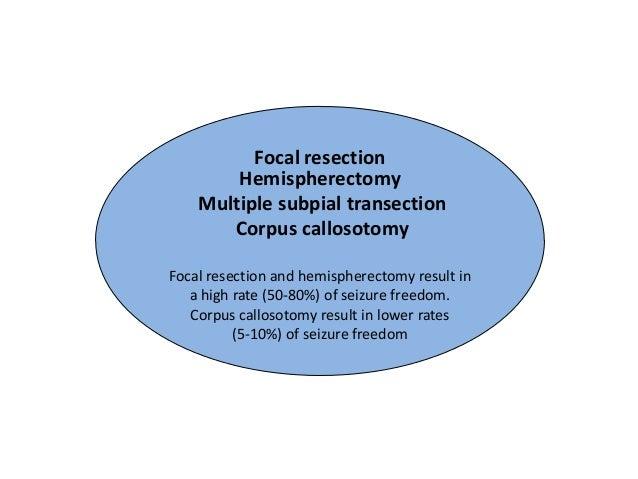 prednisone mechanism of action