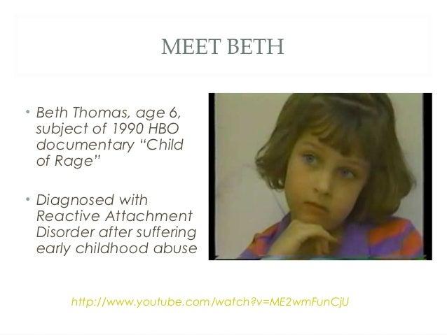 Meet beth beth thomas age 6 subject of 1990 hbo