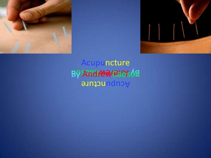 AcupunctureBy AndrewCaosunBy AndrewCaosun  Acupuncture
