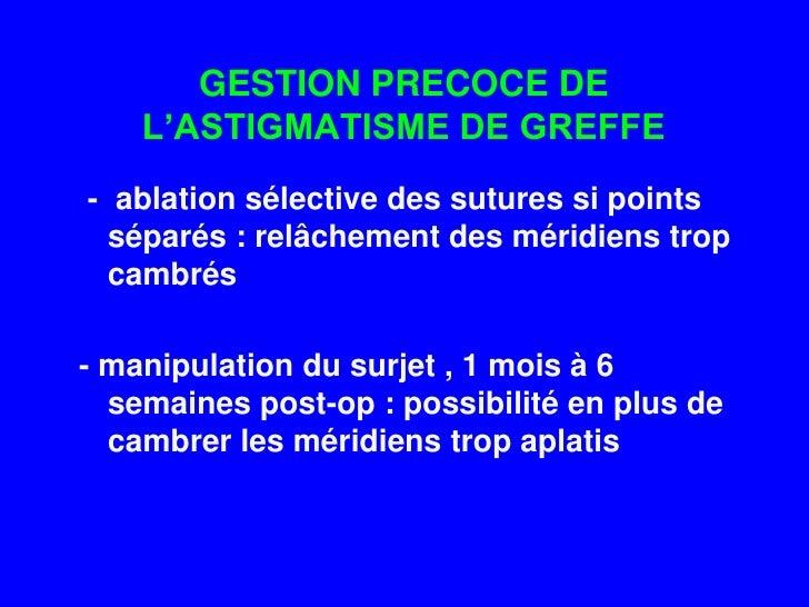 Chirurgie Laser Astigmate Opration Des Yeux Marseille