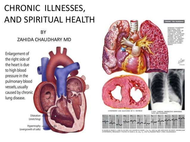 CHRONIC ILLNESSES, AND SPIRITUAL HEALTH BY ZAHIDA CHAUDHARY MD