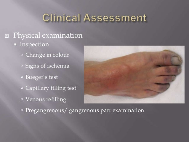 Chronic Lower Limb Ischemia. Hp Disk Storage Format Tool Web Assign Psu. Masters Housing Rentals Virtual Adding Machine. Therapy Covered By Insurance. Qualifications For A Private Investigator. Website Optimization Services. Sql Server Integration Services. Probate Attorney California Dui Laws Texas. Pa Teacher Certification Eliot Middle School