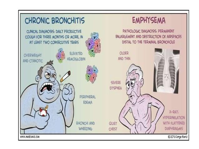 glucocorticosteroids copd