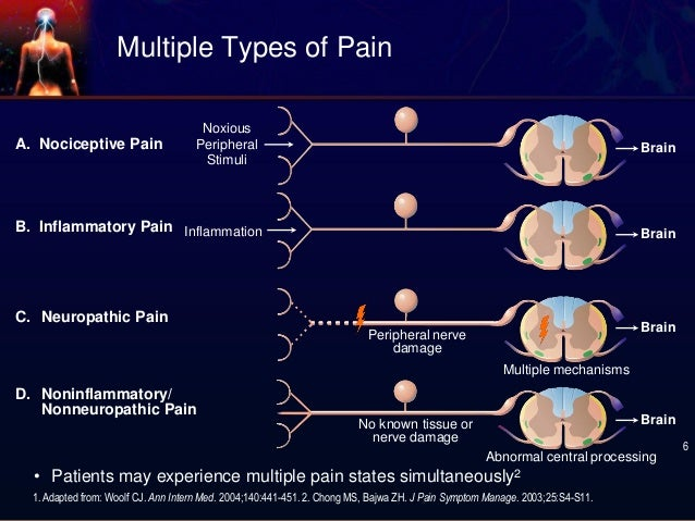 Neuropathic Pain Mechanism Pain c Neuropathic Pain