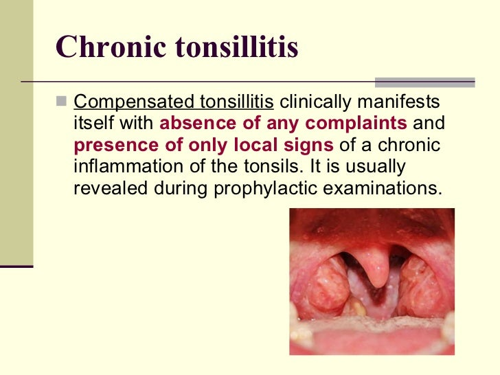 What Causes Tonsillitis In Adults