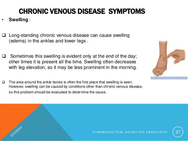 Lower Leg Swelling Causes Prozac