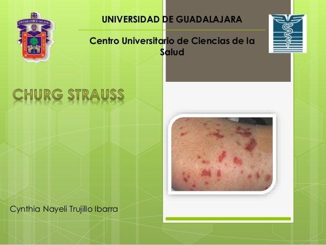 UNIVERSIDAD DE GUADALAJARA  Centro Universitario de Ciencias de la  Cynthia Nayeli Trujillo Ibarra  Salud