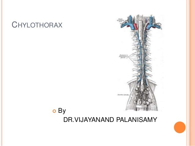 Chylothorax