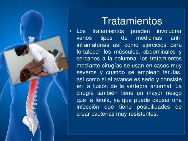 La pérdida de la conciencia a la hernia sheynogo del departamento de la columna vertebral