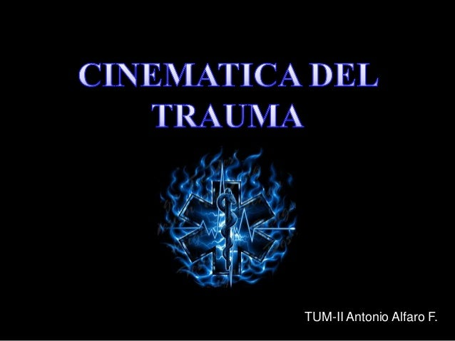 TUM-II Antonio Alfaro F.