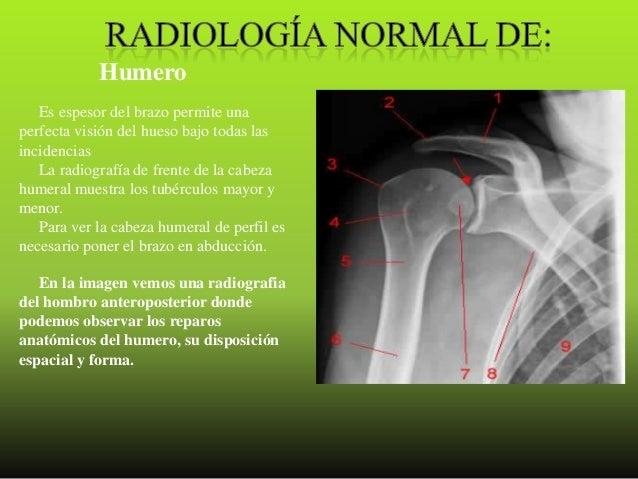 Frattura di vertebre in trattamento di reparto lombare