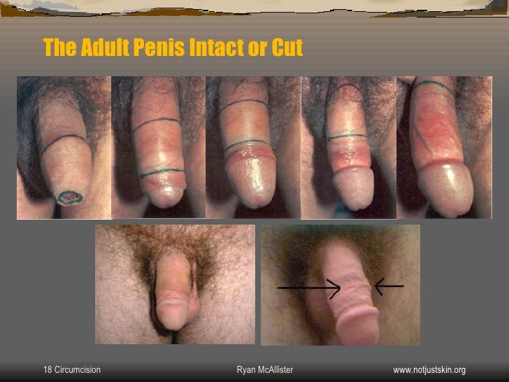 penis Adult uncut