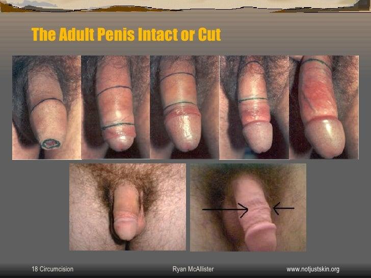 Circumcision in asheville adult
