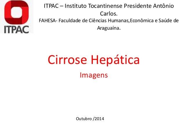 ITPAC – Instituto Tocantinense Presidente Antônio  Carlos.  FAHESA- Faculdade de Ciências Humanas,Econômica e Saúde de  Ar...