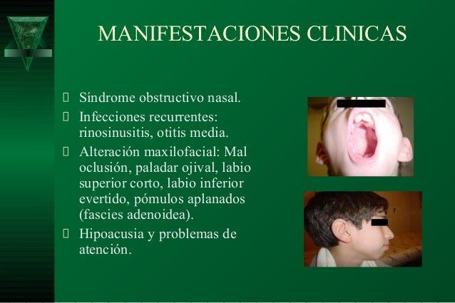 Cirugia De Adenoides Endoscopica
