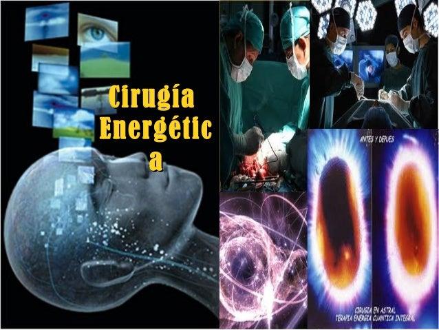 CirugíaCirugía EnergéticEnergétic aa