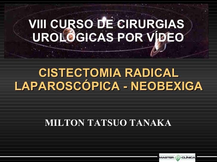 VIII CURSO DE CIRURGIAS  UROLÓGICAS POR VÍDEO CISTECTOMIA RADICAL LAPAROSCÓPICA - NEOBEXIGA MILTON TATSUO TANAKA