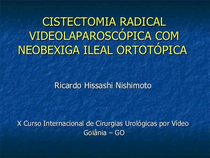 Cistectomia radical videolaparoscópica com neobexiga ileal ortotópica