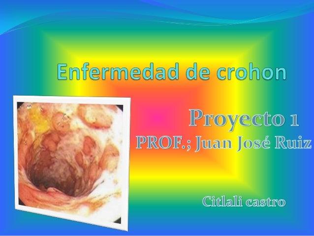  Es una forma de enfermedad intestinal  inflamatoria (EII) que afecta por lo regular a los intestinos, pero puede ocurrir...