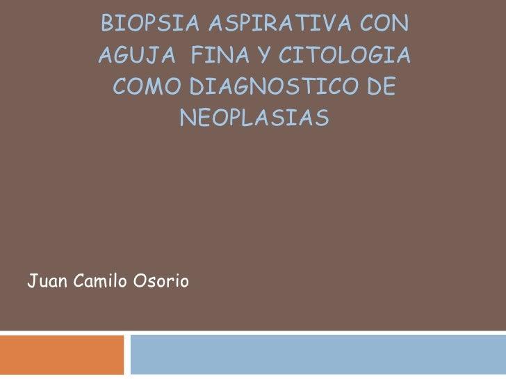 BIOPSIA ASPIRATIVA CON AGUJA  FINA Y CITOLOGIA COMO DIAGNOSTICO DE NEOPLASIAS Juan Camilo Osorio