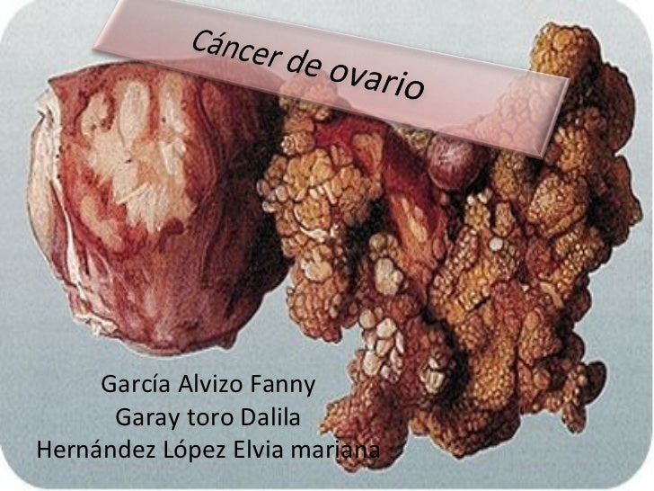García Alvizo Fanny Garay toro Dalila Hernández López Elvia mariana