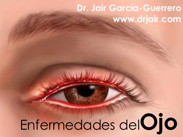 Enfermedades del Ojo Dr. Jair García-Guerrero www.drjair.com