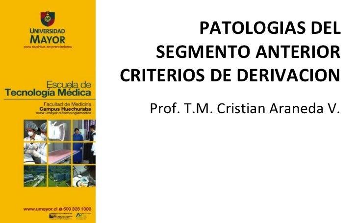 PATOLOGIAS DEL    SEGMENTO ANTERIORCRITERIOS DE DERIVACION   Prof. T.M. Cristian Araneda V.