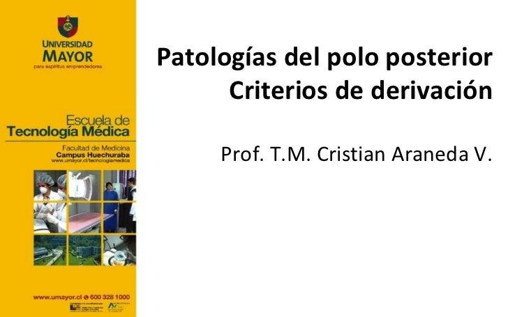 Patologías del polo posterior      Criterios de derivación     Prof. T.M. Cristian Araneda V.