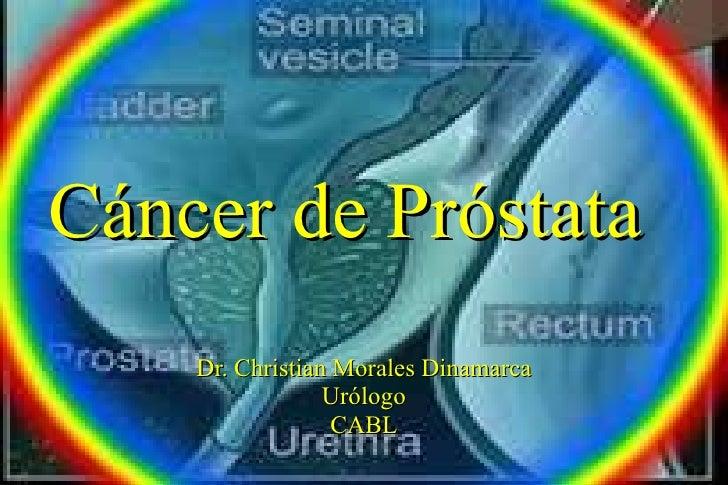 Cáncer de Próstata Dr. Christian Morales Dinamarca Urólogo CABL