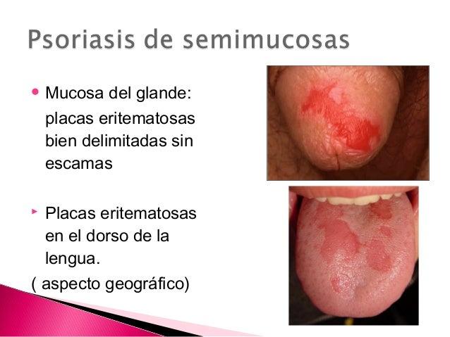 El tratamiento por la sal común la psoriasis