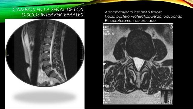 La diagnosis y el tratamiento de las crisis de la columna vertebral