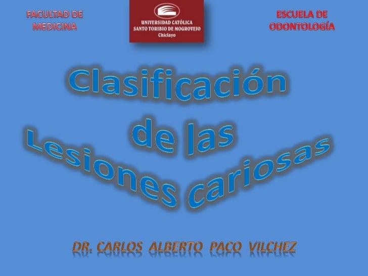CLASIFICACIÓN DE LAS LESIONES CARIOSAS     SEGÚN SU LOCALIZACIÓN EN LA PIEZA DENTARIA     Baum y col, 1996, Mondelli y col...
