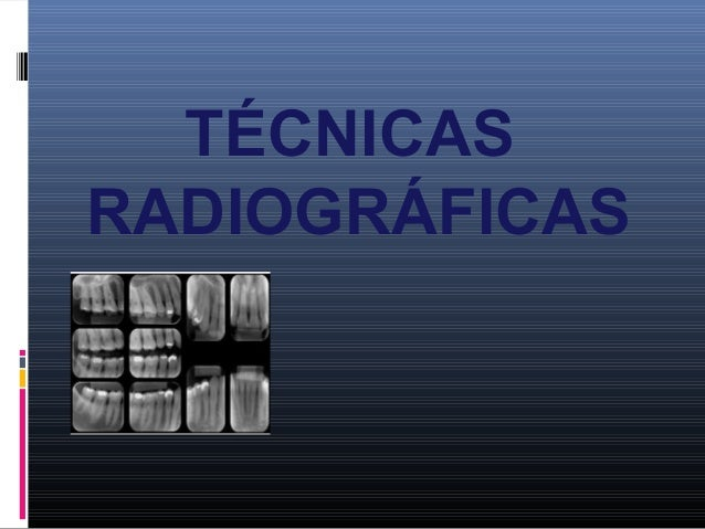Clasificación radiografias