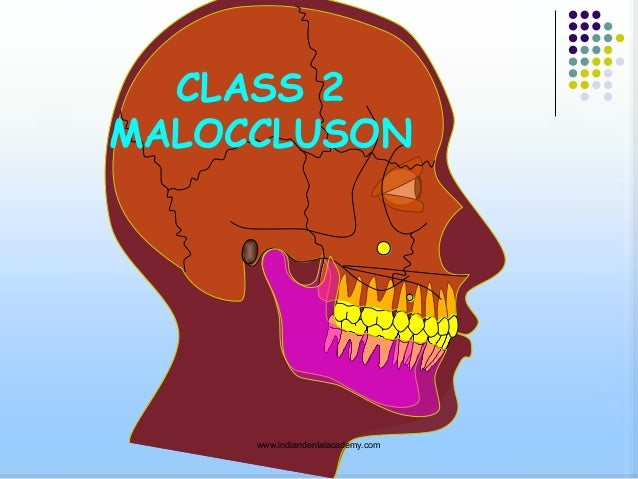 Class2 malocclusion /certified fixed orthodontic courses by Indian dental academy