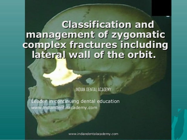 Classification and management of zygomatic complex fractures including lateral wall of the orbit.  INDIAN DENTAL ACADEMY L...