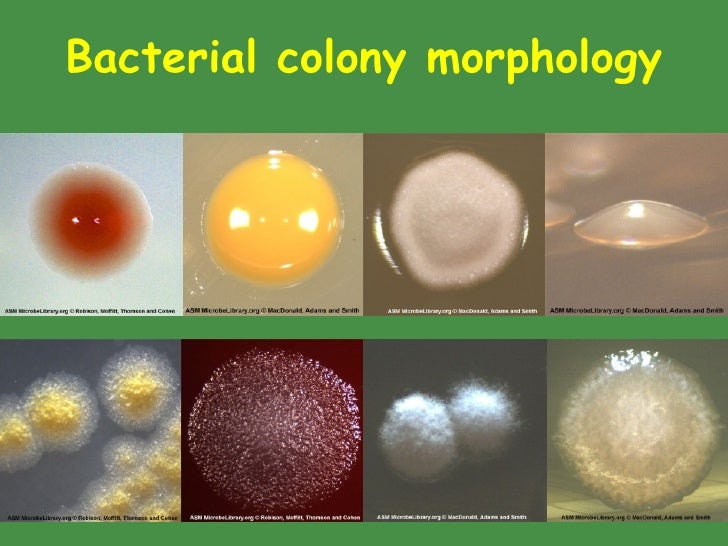 bacteria colony appearance morphology Hsc 2410: microbiology colony morphology: the following outline will be helpful for verbally communicating the appearance of observed colonial growth.