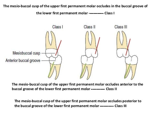class 1 molar and canine relationship