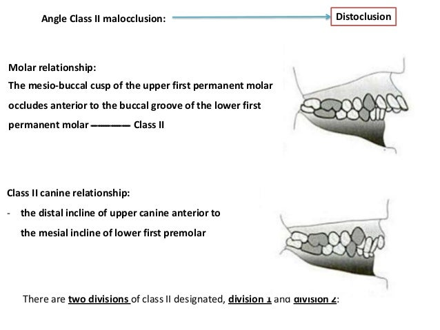 ideal occlusion and malocclusion essay Months of life to achieve optimal growth, development and health [1]   malocclusion[mesh] or dental occlusion[mesh] or maxillofacial development[ mesh]) and (bottlefeed or bottle  summary score (stars) 4/10 4/10.
