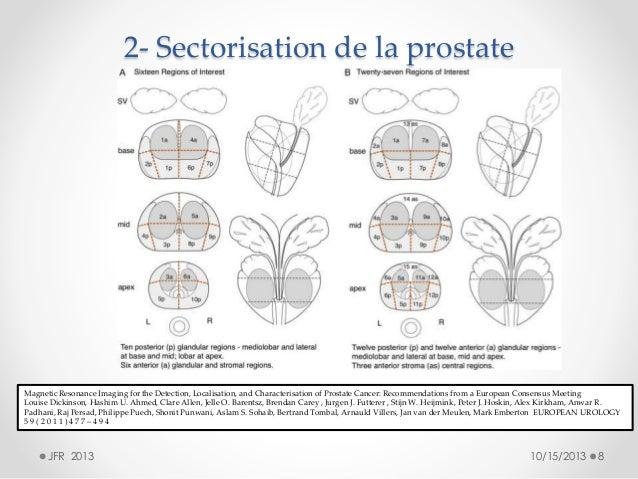 Prostate anatomy images